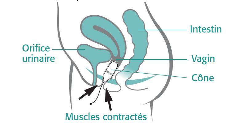 Как укреплять вагинальные мышцы