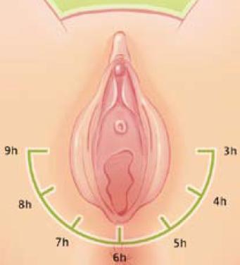 Massage externe du périnée - positionnement des doigts